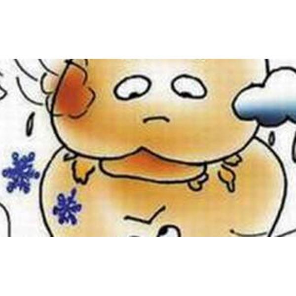 哈尔滨风湿病